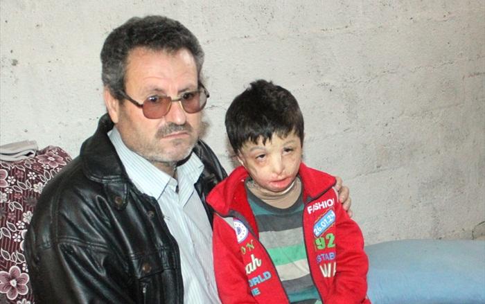 Suriyeli Mahmud'u varil bombası yaktı