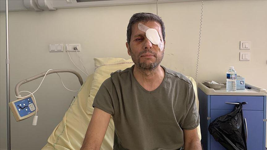 Fransız polisi tarafından gözünden yaralanan AA Foto Muhabiri Yalçın yaşadıklarını anlattı