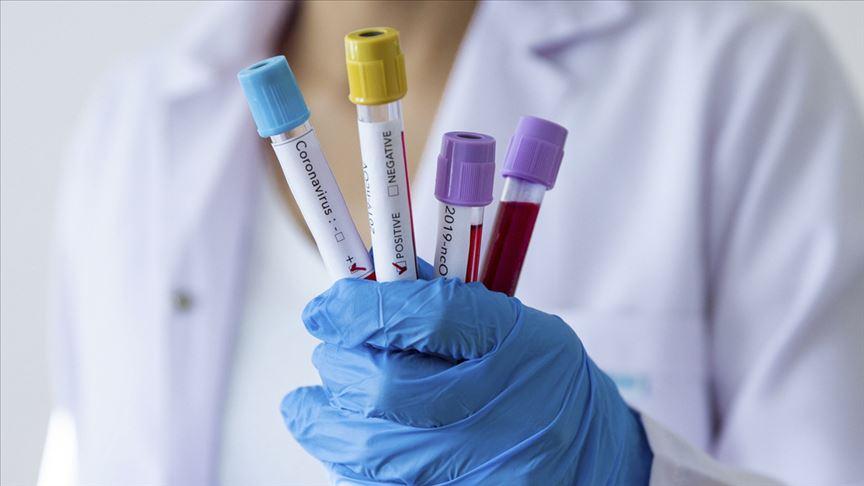 Sağlık Bakanlığı Referans Laboratuvarı'nda Kovid-19 virüsü izole edildi